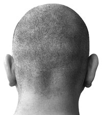 Nioxin Scalp Treatment For Healthy Hair