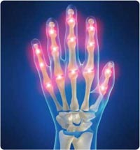 Natural Relief Options for Arthritis Pain