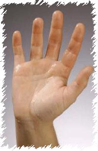Get Rid of Sweating Palms Without the Surgery